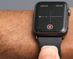 Kardia Band für Apple Watch (Bild: AliveCor)