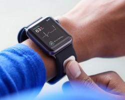 Kardia Band von AliveCore bietet bereits eine schlanke EKG-Funktion für die Apple Watch (Bild: AliveCore).