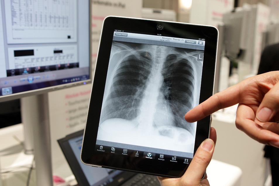 Die Darstellung von Röntgenbildern auf dem als Checkpad MED genutzten iPad (Bild: Deutsche Telekom).
